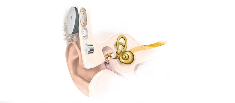 Bonebridge Bone conduction implant